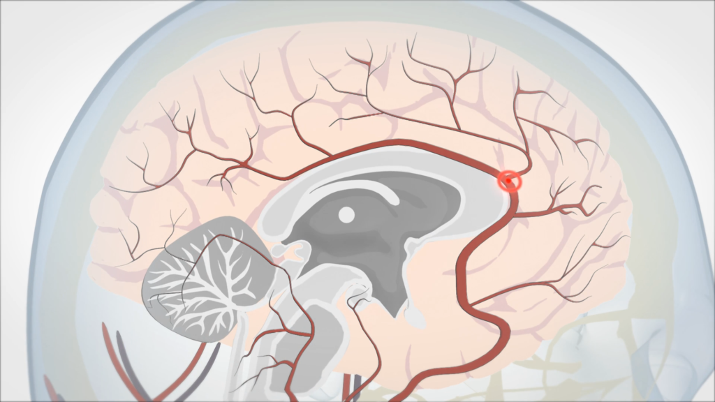 How A Stroke Impacts The Brain Illustration
